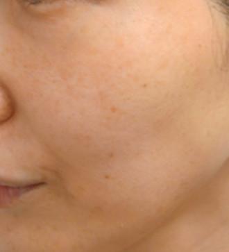 ピコトーニングでしみ・すくみ治療を行いながら ほくろ治療も同時に行いました。 お肌全体が綺麗になりました。