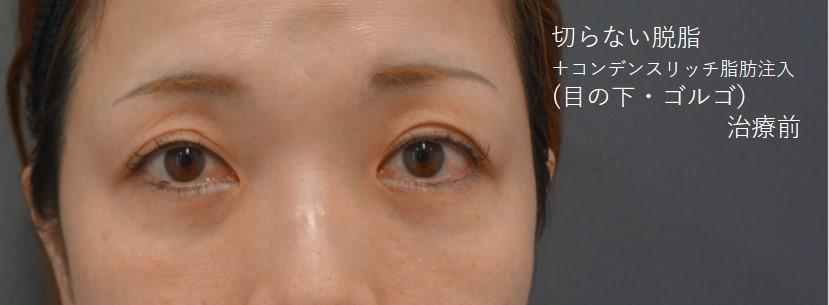 くま治療 切らない脱脂+コンデンスリッチ脂肪注入(目の下・ゴルゴ)