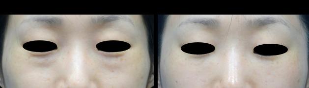 くま治療 色白の患者様も目の下のクマ治療をして色白美人になる