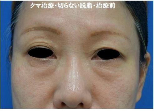 クマ治療 切らない脱脂で目の下のふくらみを取りました