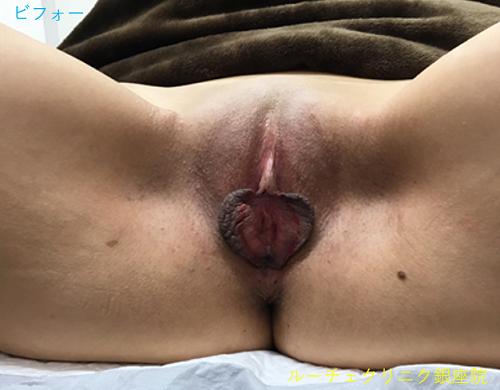 手術前は小陰唇が両側ともに伸びて広がっている状態です。バイクに乗る時、座った時に挟まって痛みなどがあり、日常生活に支障をきたしていました。見た目も気になっていたとの事です。