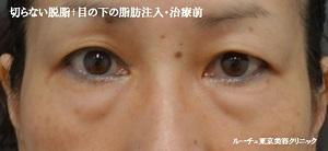 くま治療・切らない脱脂+目の下の脂肪注入(コンデンスリッチ)