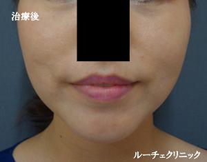 脂肪吸引(頬・顎下)クリスタルリフト