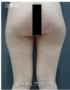 脂肪吸引(大腿)