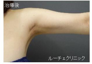 脂肪吸引(二の腕)
