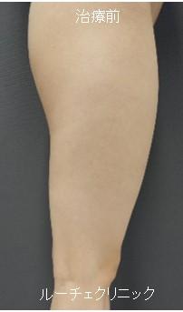 脂肪吸引(大腿全周)