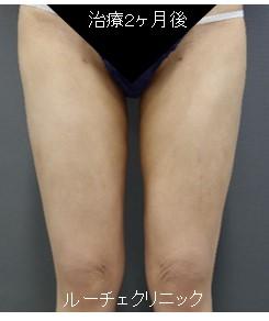 脂肪吸引(大腿全周、膝、膝内側、膝上)