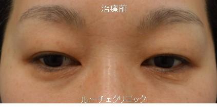 眉下切開+脱脂+コンデンスリッチ脂肪注入