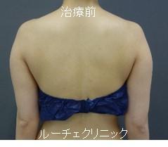 脂肪吸引(二の腕、付け根)