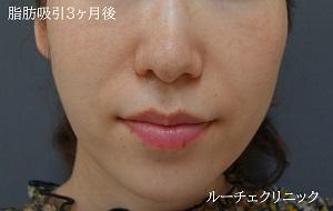両頬・顎下脂肪吸引