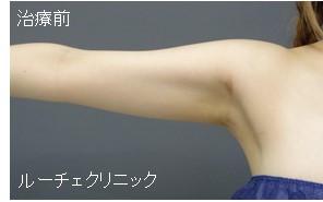 脂肪吸引(二の腕、付け根、副乳、ブラ上)
